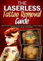 Laserless Tattoo Removal Guide Review